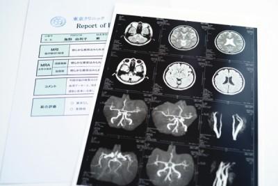 5年前に受けた脳ドックではMRIで脳の状態、MRAで血管の状態をチェック。年齢相応の脳梗塞の痕跡も認められず、海野さんが気に なったという脳の萎縮も心配なしと判明。前回の受診から5年たっているため、今年は再受診を検討しているとか