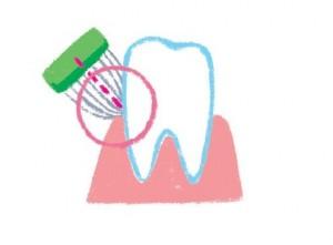 歯茎ブラッシング イラスト