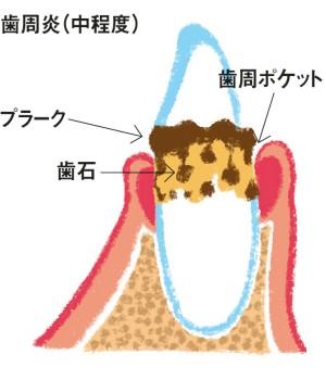 歯周炎(中程度)イラスト
