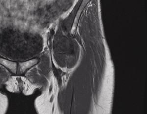 股関節 MRI画像