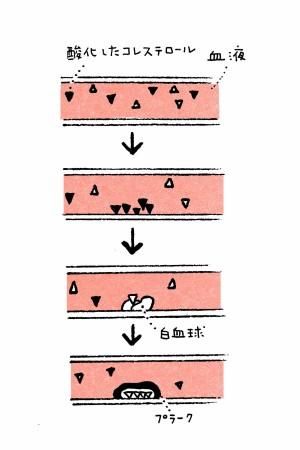 血液中のコレステロールが酸化イメージ