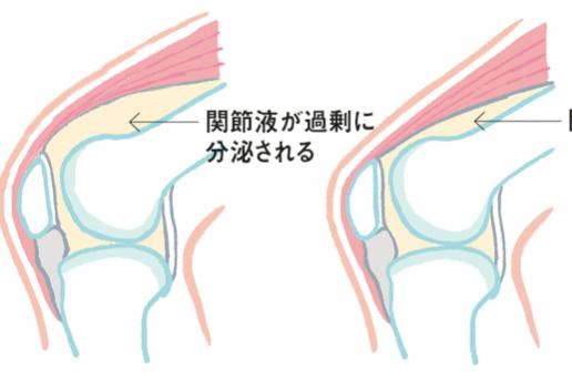 大人のO脚には要注意!③膝痛や変形が起こるメカニズムと治療法