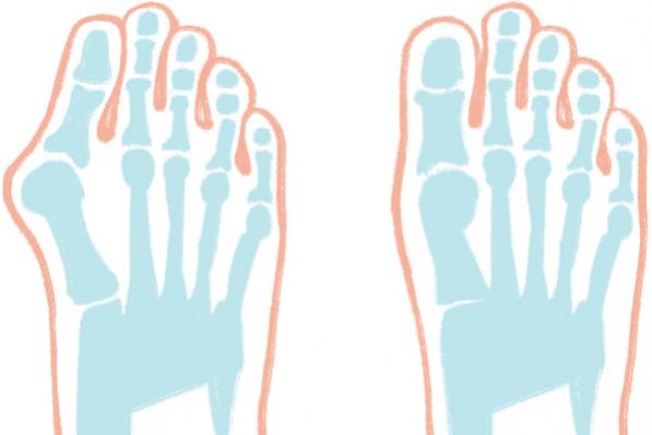 """足の5大トラブルの原因と治療①親指が""""くの字""""に曲がる「外反母趾」"""