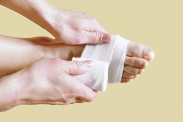 包帯療法で外反母趾の痛みを軽減!/美賢人の「脚&足」対策④