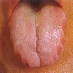 樫出さん 舌 ポッテリ