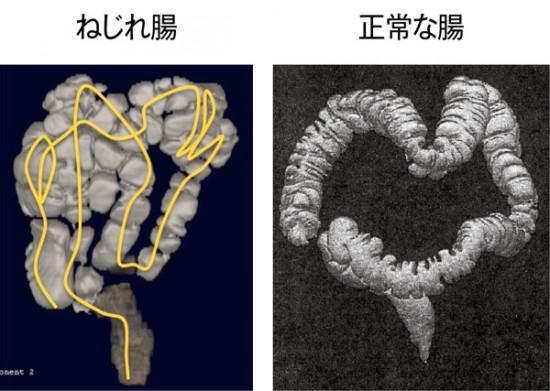 [右:正常な腸]解剖図でよく見るような大腸が小腸のまわりをぐるりと囲んだ正しい状態の腸は、欧米人に多く、日本人には少ない [左:ねじれ腸]大腸が長く、グニャグニャにねじれた「ねじれ腸」。正常な状態とはかけ離れています。日本人の多くはこのタイプ