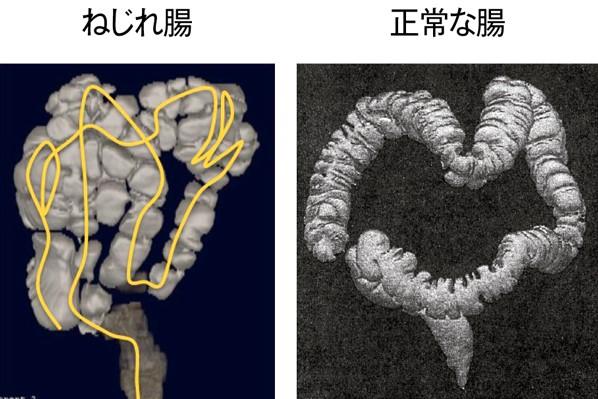 美腸ケア⑦「ねじれ腸マッサージ」で超ガンコな便秘と決別!①