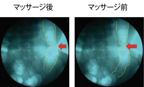 [右:マッサージ前]矢印の箇所がねじれた部分で、細くなっています [左:マッサージ後]マッサージ後は細くなっていた部分が緩み、太くなっているのがわかります