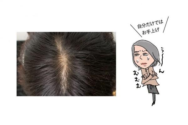 髪と頭皮のために今すべきこと10/<その7>ぺしゃんこ&薄毛の最終手段!「薄毛治療」にトライ①
