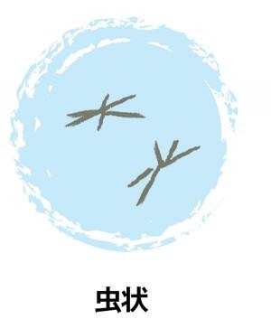 目の病気「飛蚊症(ひぶんしょう)」症状2