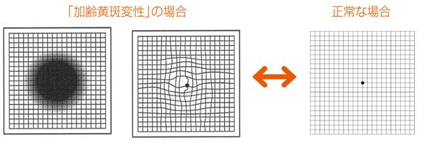 MyAge_008_P162-01-2C_Web用
