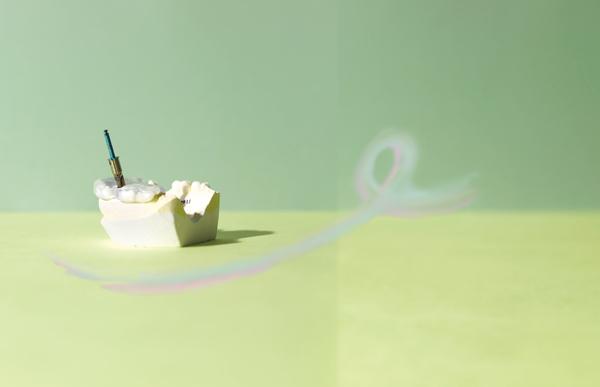 デンタルIQ インプラント イメージ