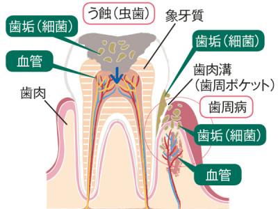 デンタルIQ 歯 図