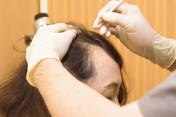 """厳選! 「薄毛」と「白髪」の予防法と治療法:「薄毛」対策④/頭皮への栄養運搬をスムーズにする""""鍼治療"""""""