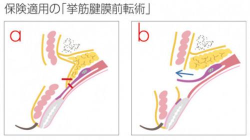 眼瞼下垂 保険適用a,b