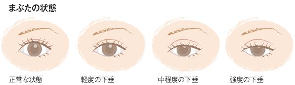 眼瞼下垂 まぶたの状態