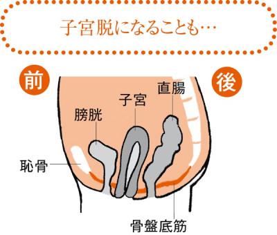 60~70代以降になると、骨盤底筋が緩みきって骨盤臓器を支えきれなくなります。子宮が腟内に落ち込んで腟の外に脱出する子宮脱や、膀胱が隣の子宮側に倒れかかって、膀胱の一部が腟壁内に突出する膀胱瘤になる人も