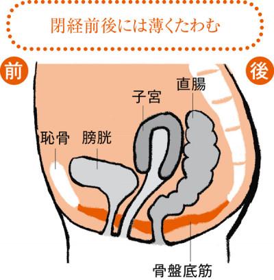 更年期(閉経前後)になると、骨盤底筋の弾力が失われ、骨盤臓器が下垂ぎみに。子宮が背中側を向く子宮後屈になりがちです