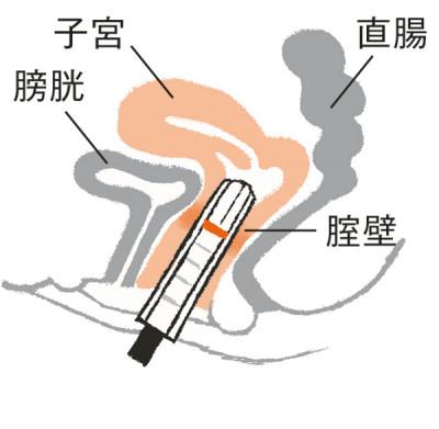 腟壁に炭酸ガスレーザーの熱エネルギーを与えると、腟の組織に厚みが出て、緩みが改善されます。45歳くらいまでの人に効果的。1回10万円~