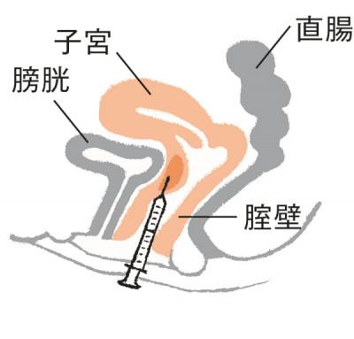 腟壁にヒアルロン酸を注入すると、閉経後に薄くなった腟壁に厚みが増します。45~55歳くらいの人に効果的。1回10万~20万円(1㏄あたり1万円)