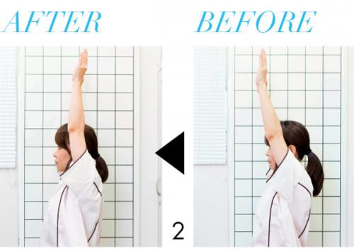 2.施術前は肩が硬く、腕が真っすぐ上に 上がらない状態。施術後は腕がラクに真上ま で上がるように。