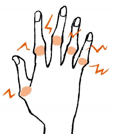 手の痛み ブシャール結節