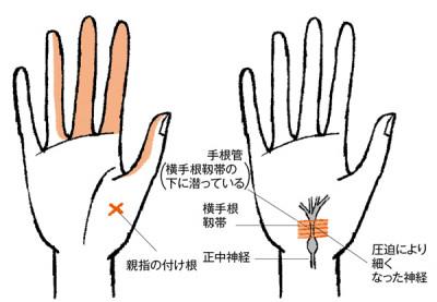手の痛み 手根管症候群