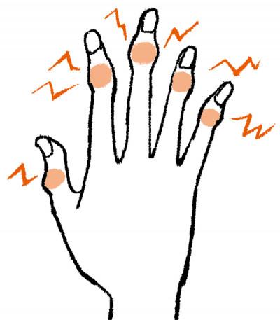 手の痛み へバーデン結節
