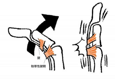 手の痛み ばね指