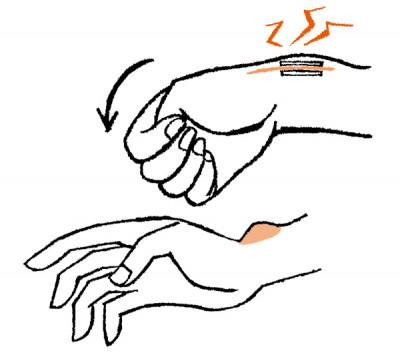 手の痛み ドケルバン病