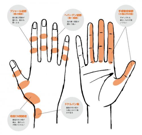手の痛み 手の炎症いろいろ