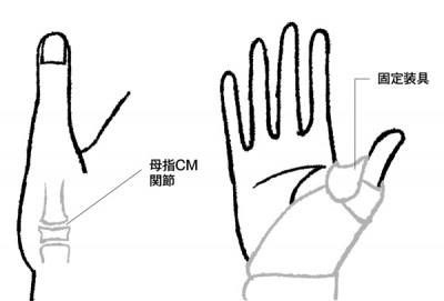手の痛み 母子CM関節症