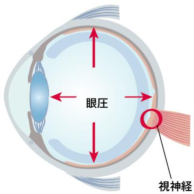 眼球の丸みを保つために必要な眼圧ですが、その圧力が視神経を傷めてしまうことも。眼圧の高さを左右する液体である房水が作られる量と、排出される量が均等なら、眼圧も一定に保たれます。ただし、眼圧に問題がなくても緑内障を発症するケースもあります