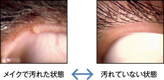 左の写真は、アイメイクが落としきれていなかったせいで、マイボーム腺が塞がってしまった目の様子