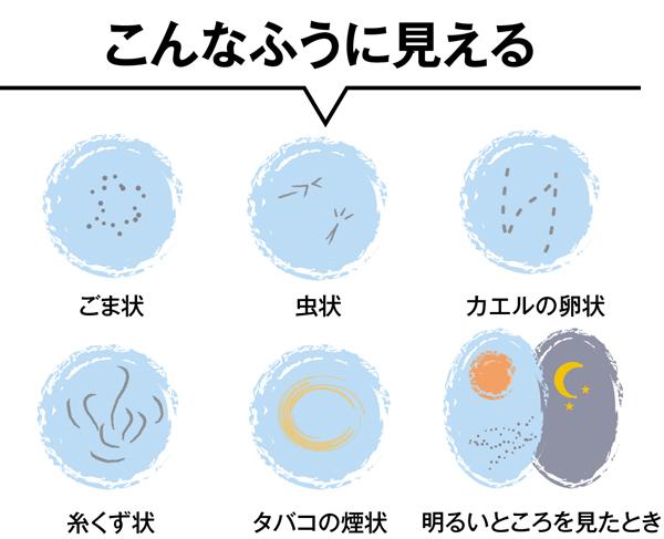 浮遊 物 白い 尿