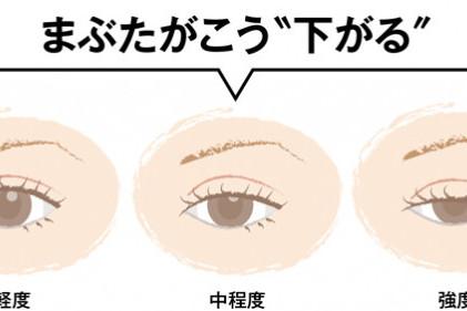 40,50代が知っておくべき「目の病気」⑥【眼瞼下垂】