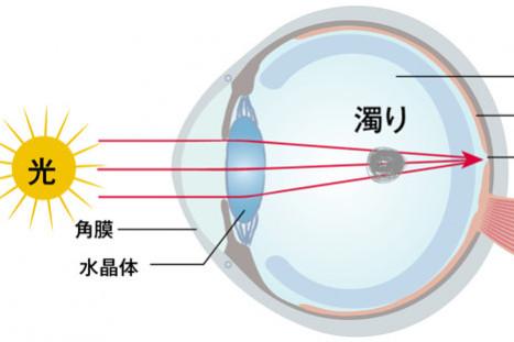 40,50代が知っておくべき「目の病気」⑤【飛蚊症】