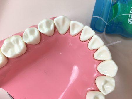 石井さん フロスと歯