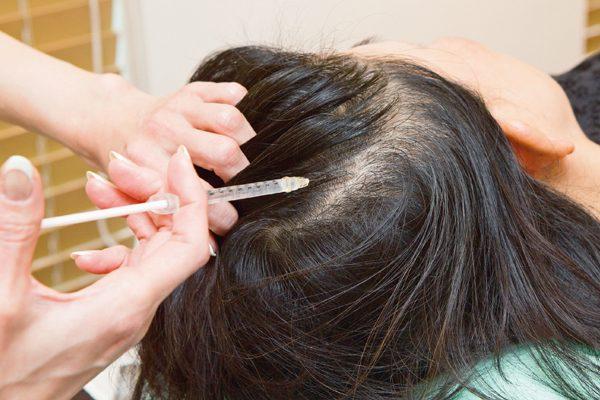 分け目の目立つ「薄毛」が気にならなくなる!①髪に必要な栄養素を見極める