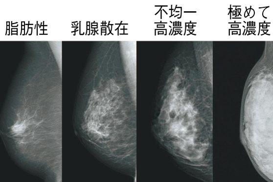 新連載!第1回  乳がんはマンモグラフィで見つからないの?(前編)日本人女性に多く、発症リスクがやや高い高濃度乳房とは?