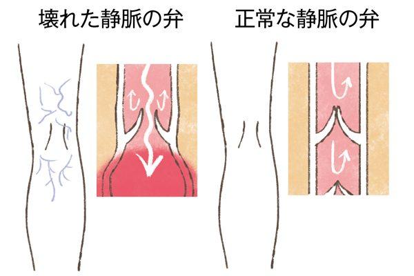 更年期に急増する「足の悩み」⑮進化する下肢静脈瘤の治療法