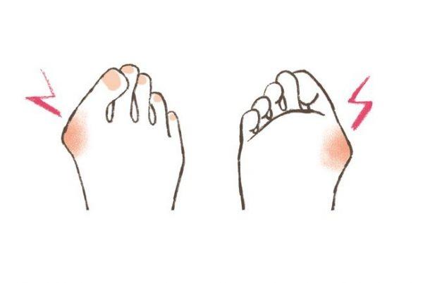 更年期に急増する「足の悩み」⑥「外反母趾」の意外な原因は?