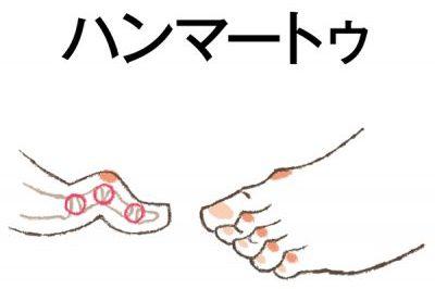 「強剛母趾」「足底腱膜炎」足裏アーチの影響/更年期に急増する「足の悩み」⑦