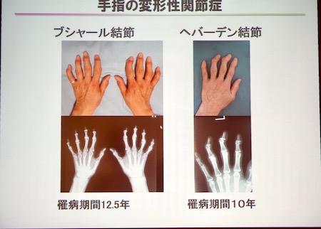 手指セミナー6