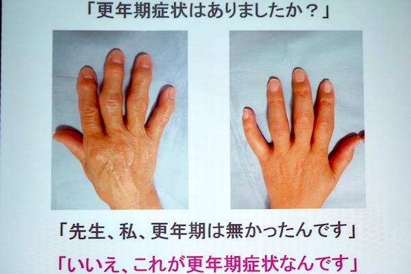 更年期世代の手指の不調。初期症状段階からの治療が始まっています