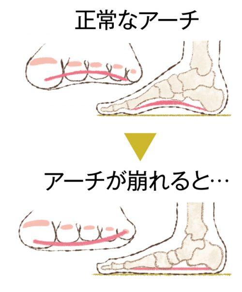 「足のアーチ フリー素材」の画像検索結果