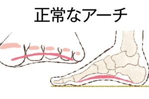 更年期に急増する「足の悩み」⑤扁平足とは、足のアーチが崩れること。そこから起こるトラブルは?