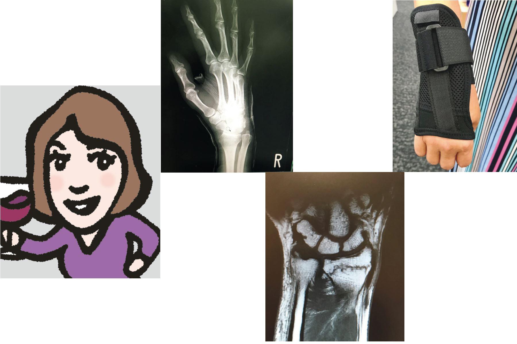 強い骨プロジェクト⑤ 骨折、私の体験談/編集部T「骨密度120%超えでも骨折!」
