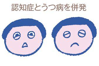 認知症・親世代編①MCI(軽度認知障害)、認知症、うつ 3つの関係は?