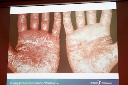 掌蹠膿疱症3